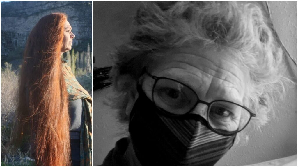 Photos of Juli Lynch before and after viral illness she believes was COVID-19, showing a change in appearance